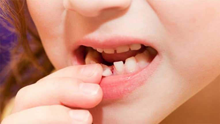 Nằm mơ thấy rụng răng đánh con gì?